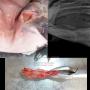 Fractura mandíbula rx y fractura mandíbula